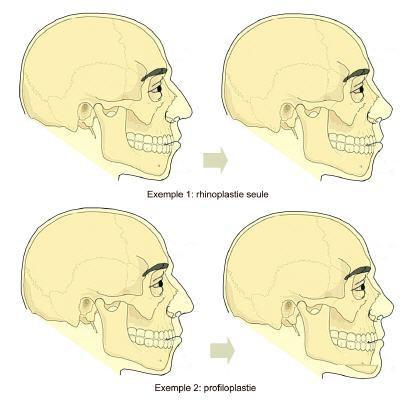 Mesurer les reliefs du visage avec la Profiloplastie